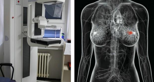 Mamograf, foto:javno.rs